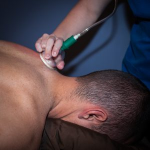 Massage Cupping…what is it?